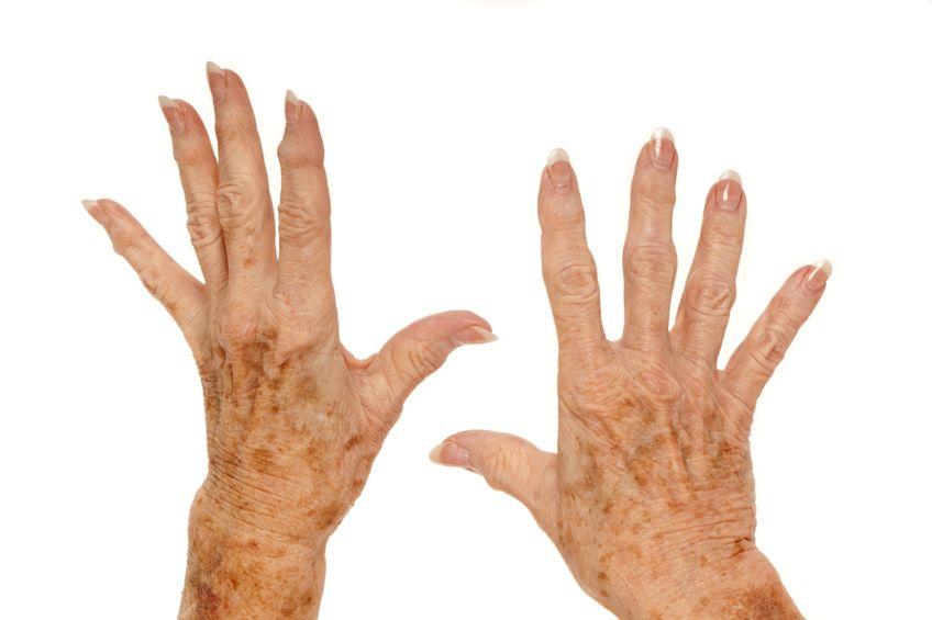 altersflecken bleichen, aufhellung altersflecken, creme gegen altersflecken